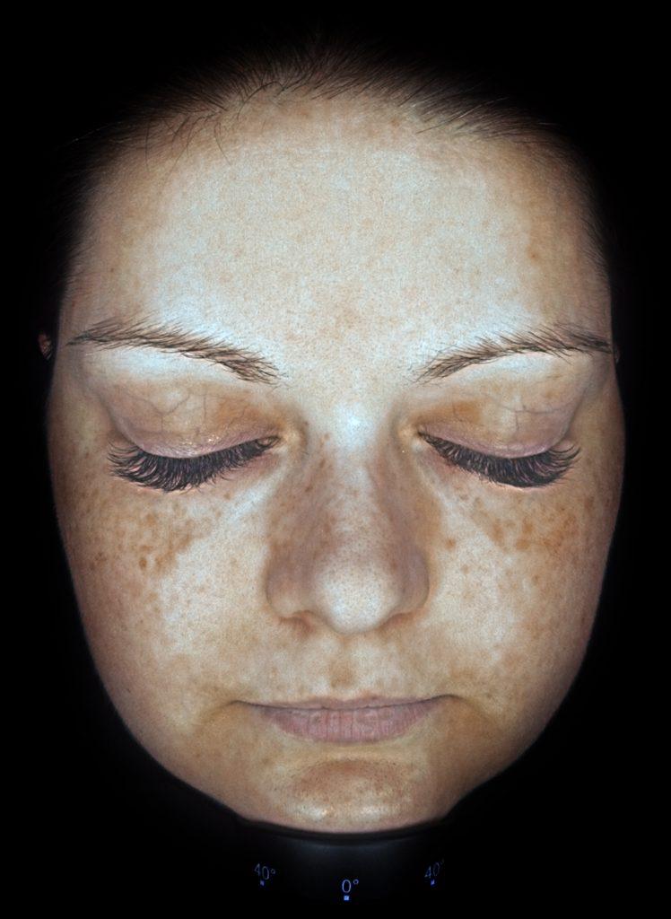 Hautanalyse-Pigmentierung